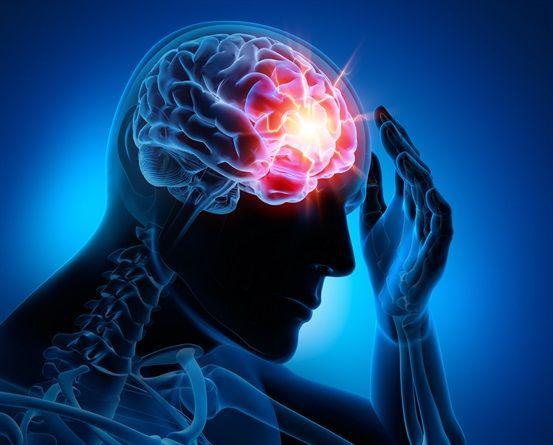 epilessia focale
