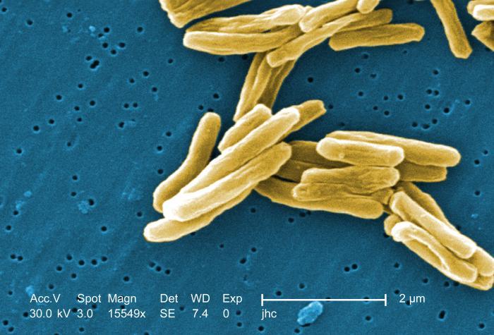 tubercolo