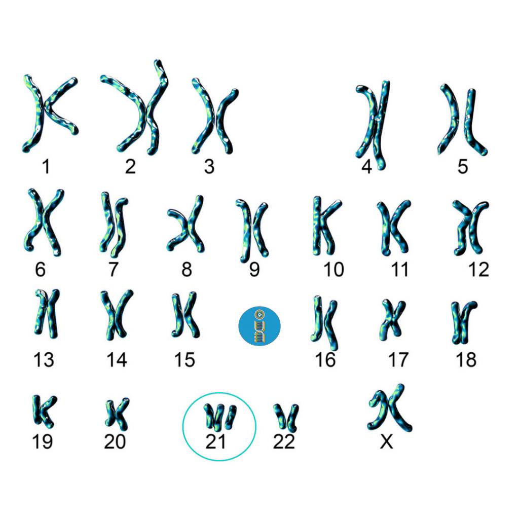 cromosoma trisomia