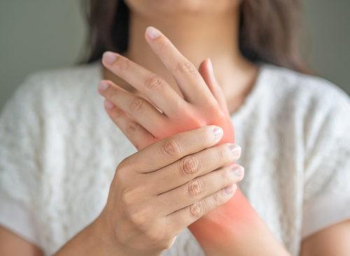dolore mani da artite reumatoide